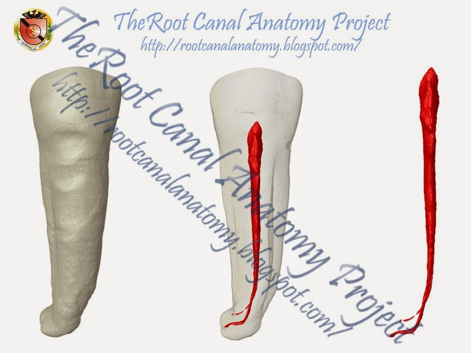 The Root Canal Anatomy Project: Mandibular First Premolar: Two Root ...