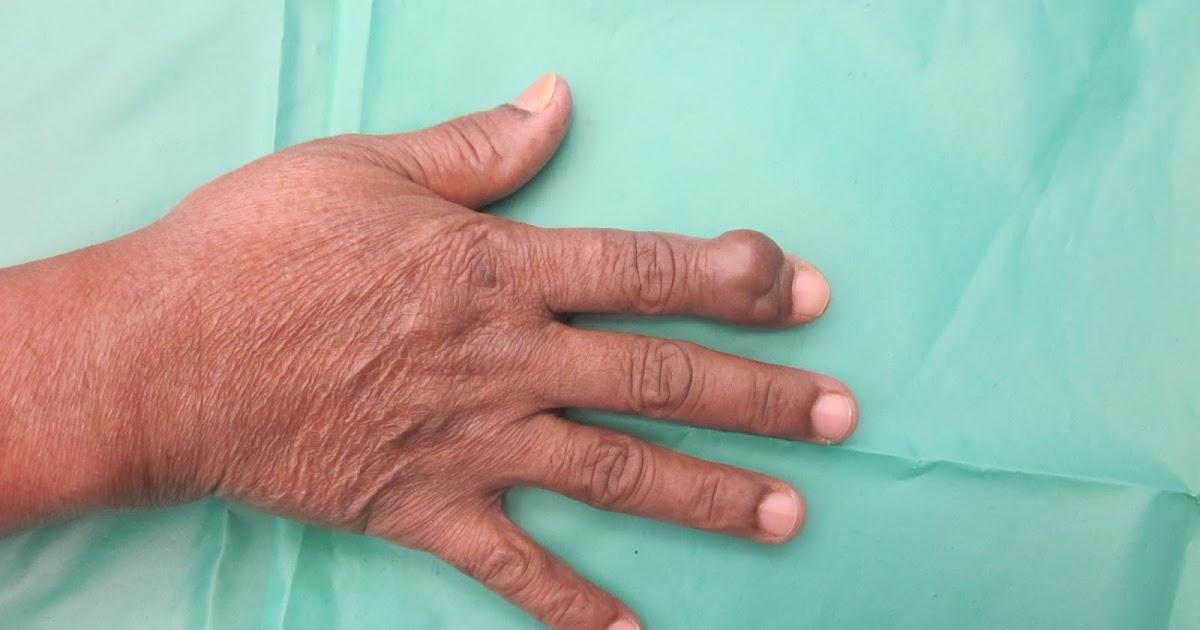 CRUSH INJURIES OF HAND...