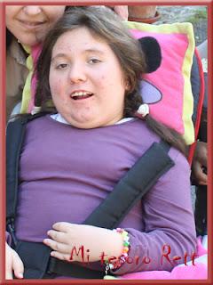 Escoliosis en el síndrome de rett