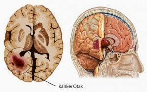 Cara Herbal Mengobati Kanker Otak