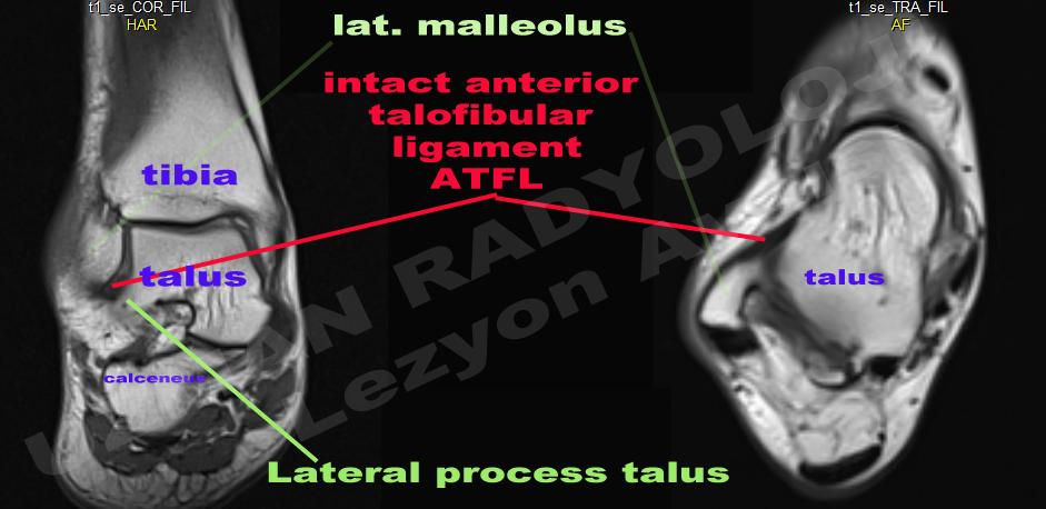 Uzman Radyoloji; lezyon avcısı: AYAK BİLEĞİ VE AYAK MRI KESİTSEL ...