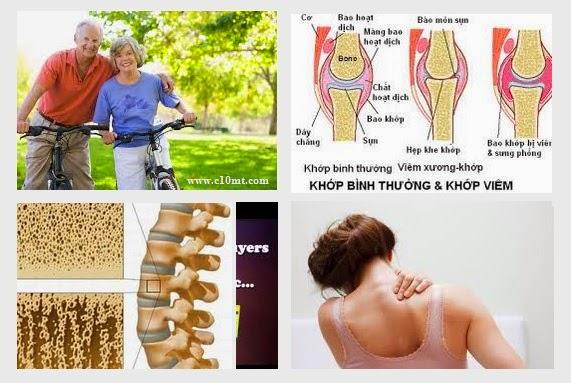 Bệnh viêm xương khớp và Collagen Hydrolysate www.c10mt.com