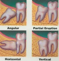 extracted wisdom teeth methods
