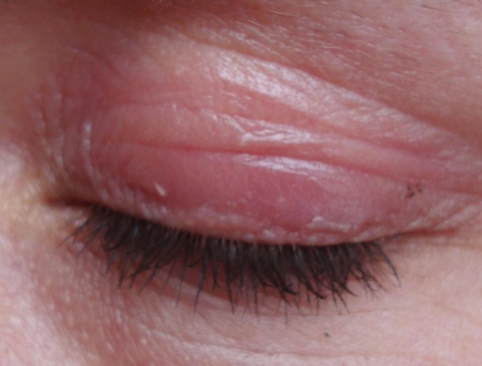 oogallergie