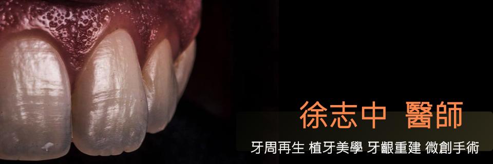徐志中醫師牙周部落格