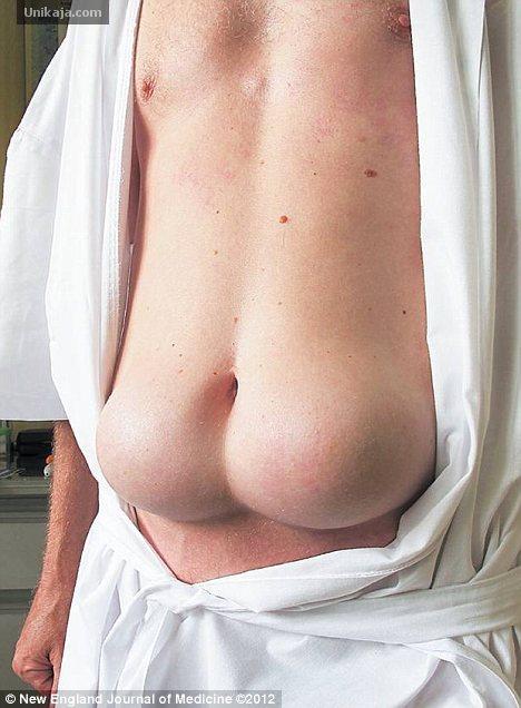 image 1 Perut Jadi Pantat Karena Insulin Disuntik Terus di Satu Tempat