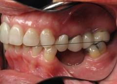 East Rutherford dental implants