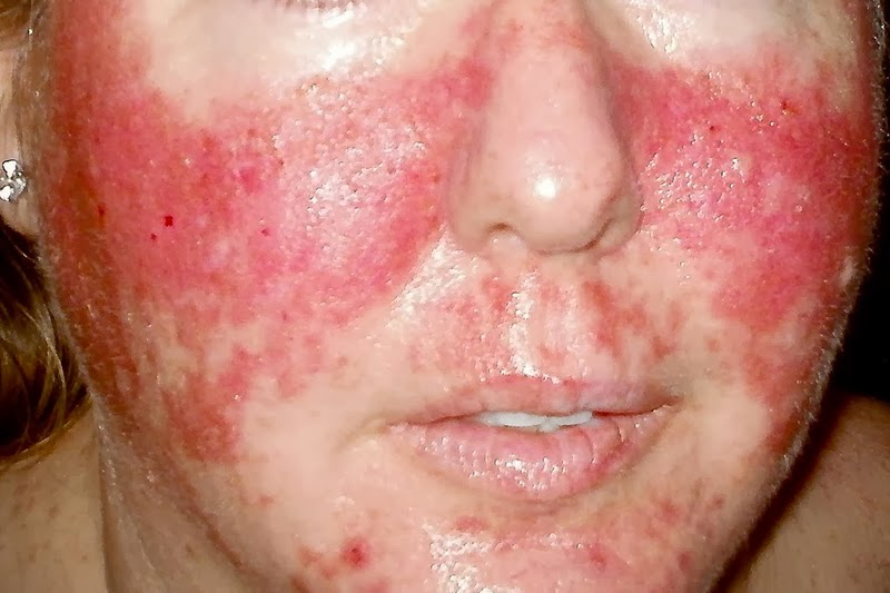 Adult face rash