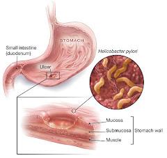Waa maxay helicobacter pylori