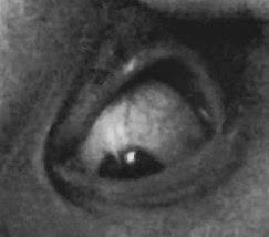 flash_fiction_horror_eye