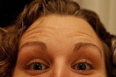 Natural ways to get rid of forehead wrinkles