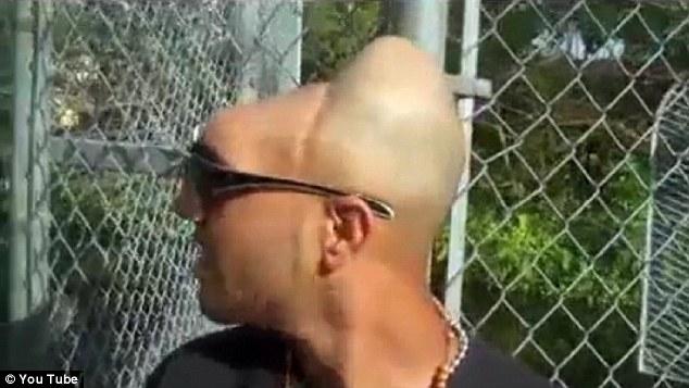 La historia del hombre que perdió la mitad de su cráneo (fotos impactantes)
