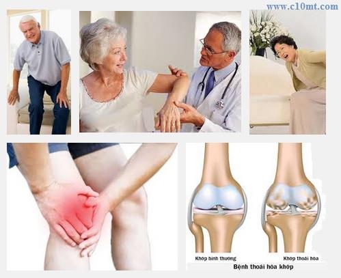 Hỏi đáp chuyên gia tư vấn bệnh đau xương khớp Phần1