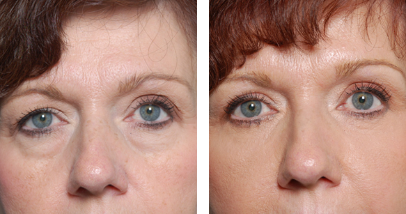 Dermal Fillers: Tear Trough Rejuvenation
