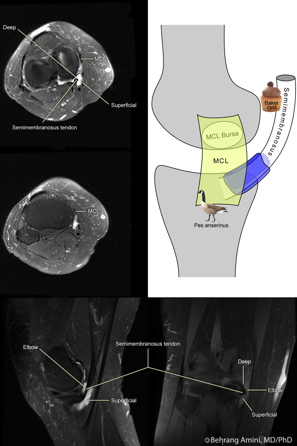 Roentgen Ray Reader  SemimembranosusTibial Collateral Ligament Bursa