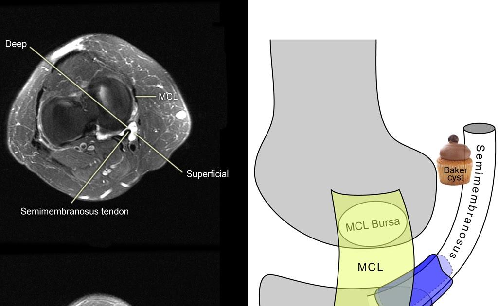 Roentgen Ray Reader  Semimembranosus
