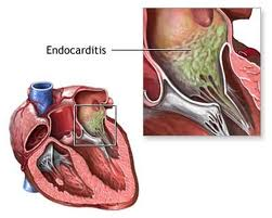 infective endocarditis diagnosis guidelines
