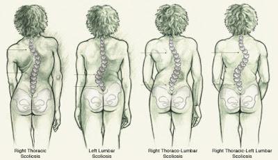 Terapi Chiropractic Untuk Skoliosis