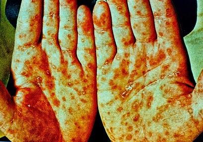 Cara mengobati penyakit kelamin sipilis