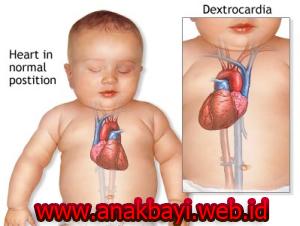 Obat Jantung Bocor Pada Bayi dan Anak Tanpa Operasi