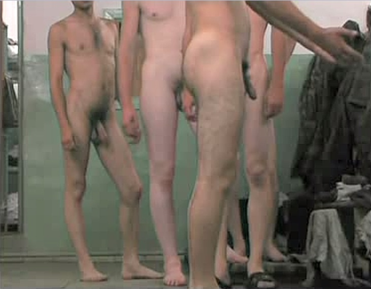 pictures of naked albinos