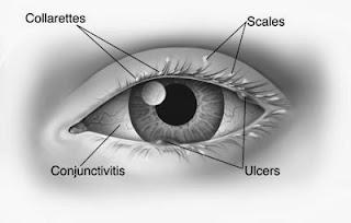 Blepharitis Causes, Symptoms, Treatment
