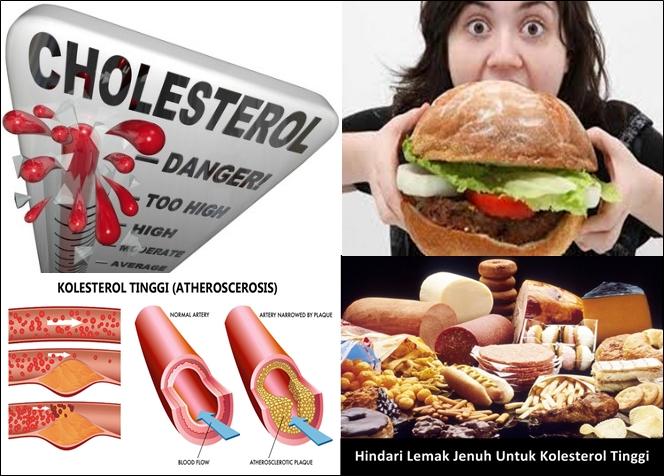 Cara Mengobati Kolesterol Tinggi Dengan Herbal Alami