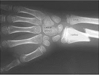 xray examination of the upper limb