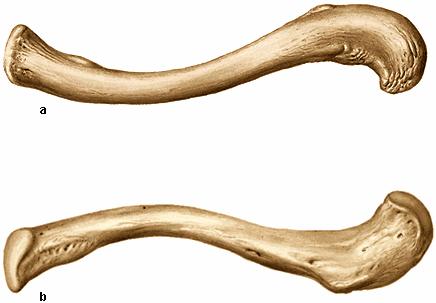 Fisioterapia Huesos