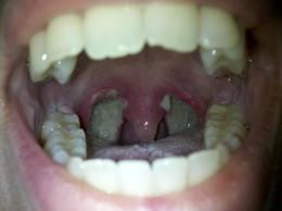 toux seche, mucus permanent dans la gorge et gorge qui