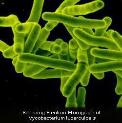 bacteria-tuberculosis