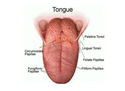 Tongue Cancer Symptoms