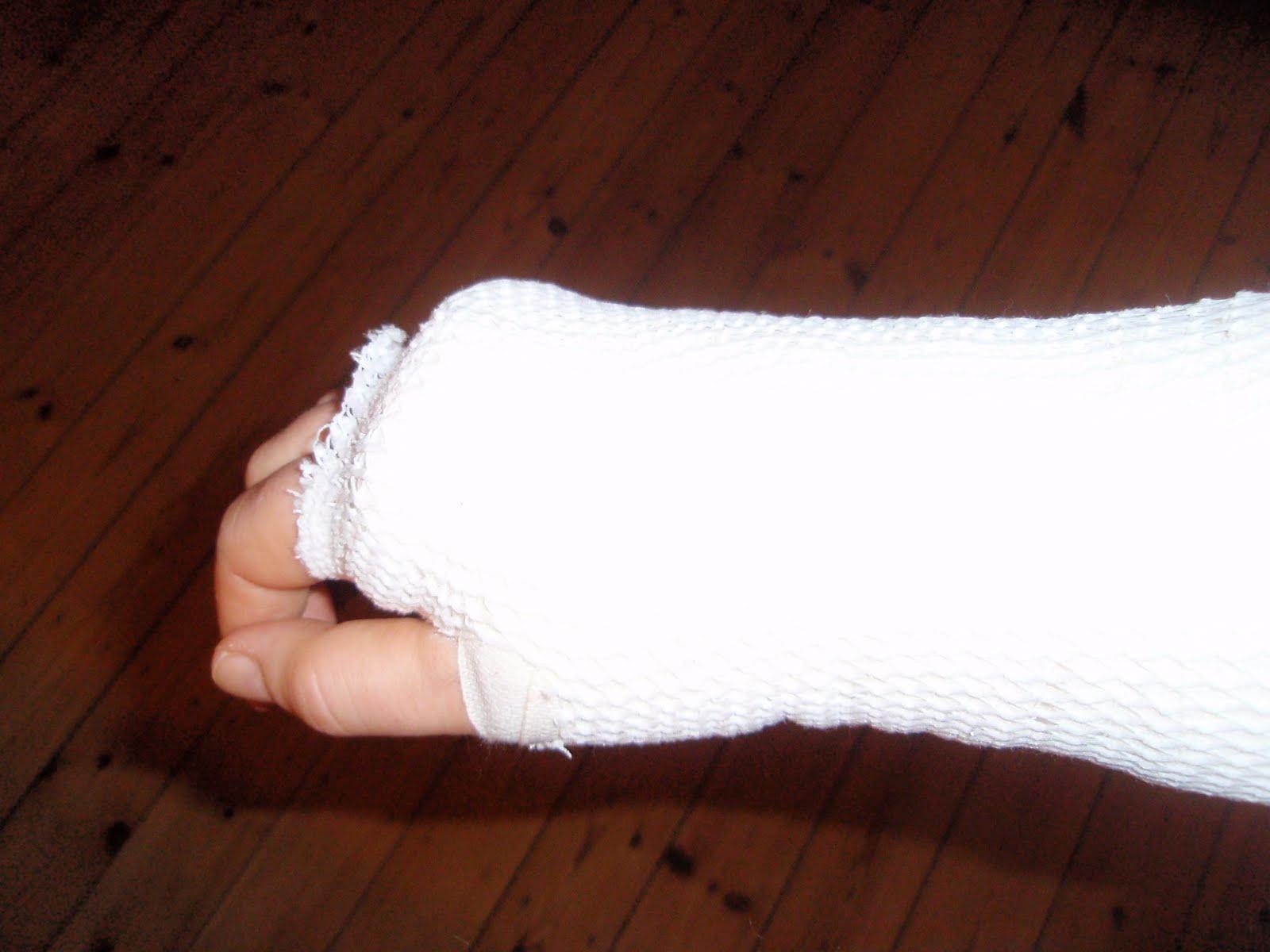 brækket hånd