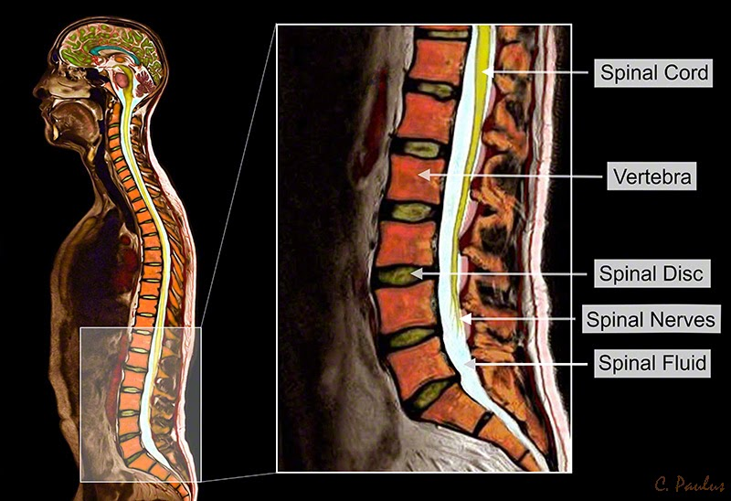 Sagittal Lumbar MRI of the Spinal Anatomy