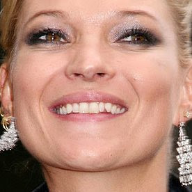 kate moss crooked smile