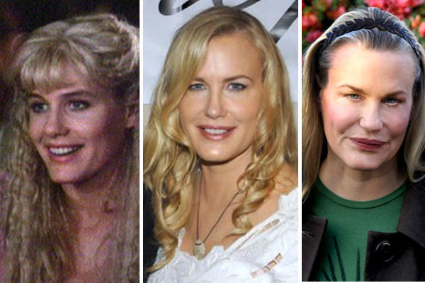 Chatter Busy: Daryl Hannah Plastic Surgery