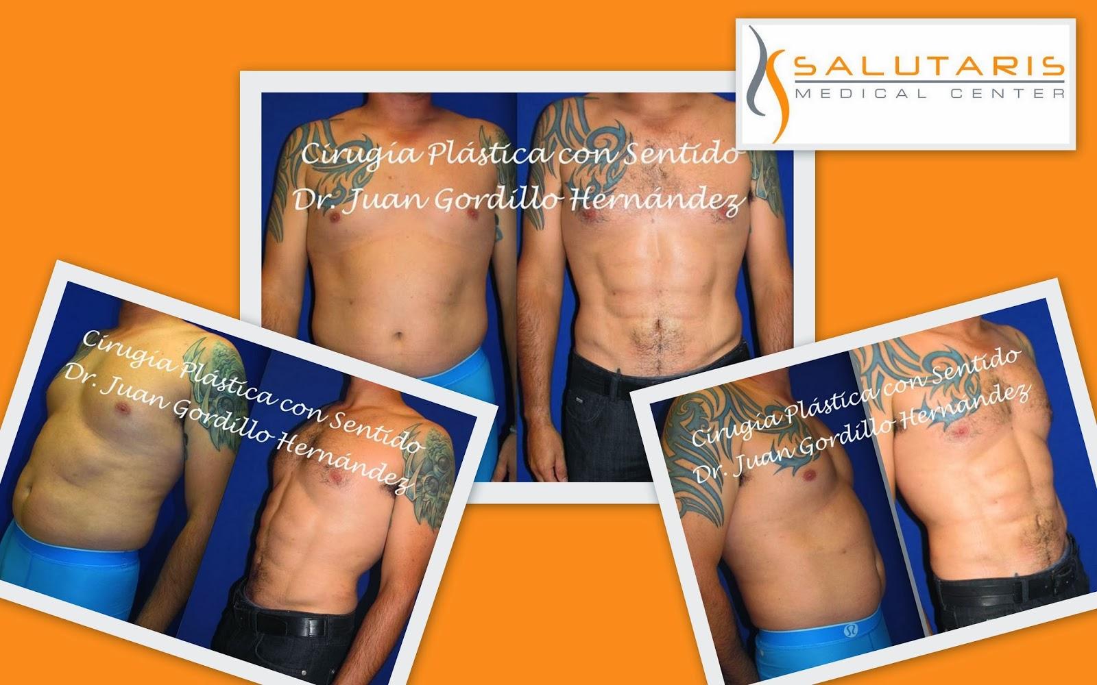 Marcaje Abdominal Laser para hombres caballeros lipo abdomen cuadritos