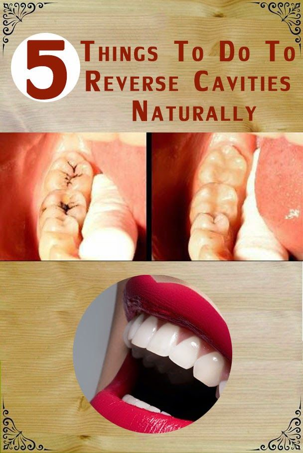 5 things to do to Reverse Cavities Naturally