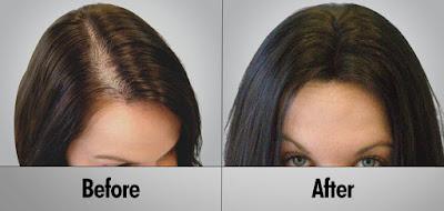 natural hair loss solution