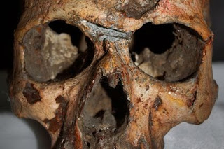 ancient skull Harappan trauma evil war