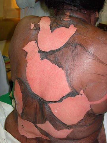 Comme enlever la pigmentation de la peau de la personne