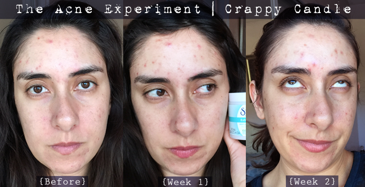 St. Ives Exfoliating Pads Before and After - The Acne Experiment