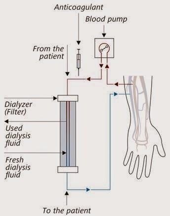 fresenius machine parts
