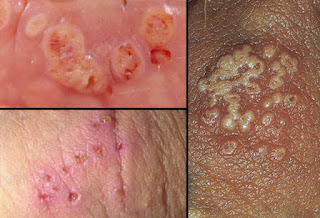 Triggers of Genital Herpes Outbreak and Recurrence