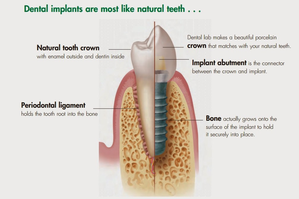 Dental Implant are most like Natural Tooth ....... For more Enquire Consults us......M - +91-78144-51477  www.32gemsdentalclinic.com