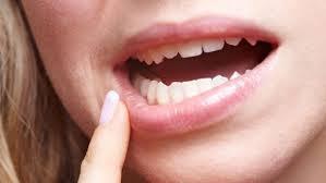 Kenapa Gigi Geraham Bungsu , Berlubang ,Tumbuh Tidak Sempurna dan Biaya Operasinya