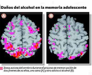 El coste del tratamiento del alcoholismo por el método dovzhenko