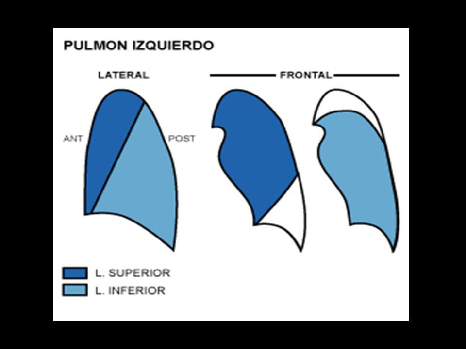 RADIOLOGIA LLEIDA: RADIOGRAFIA DE TORAX (II). Anatomía y valoración ...