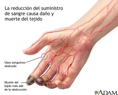 El tratamiento varikoza cerca de las osteotablas