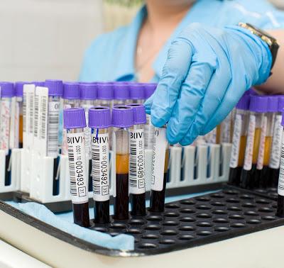 Лекарства от понижения холестерина в крови